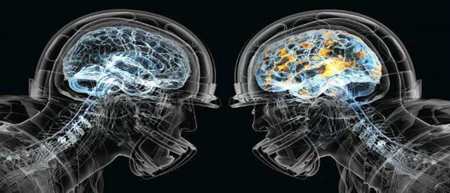 Concussion+Rates+Rise+Among+Teens